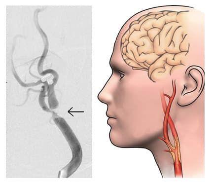 Окклюзия сонной артерии лечение
