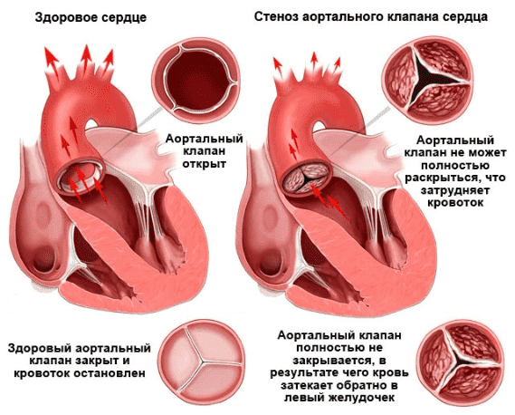 Показание к хирургическому лечению при пороках сердца -