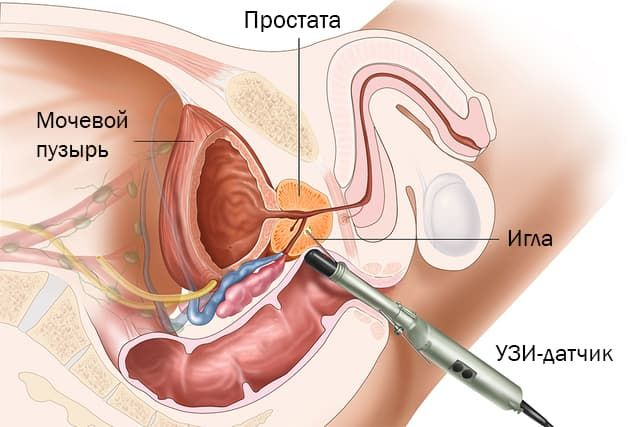 Ecografia prostata adenoma, Prosztatagyulladást okozó betegségek