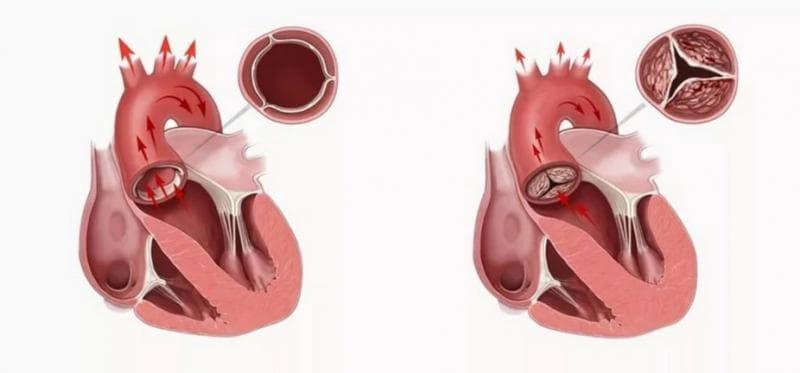Протез аортального клапана