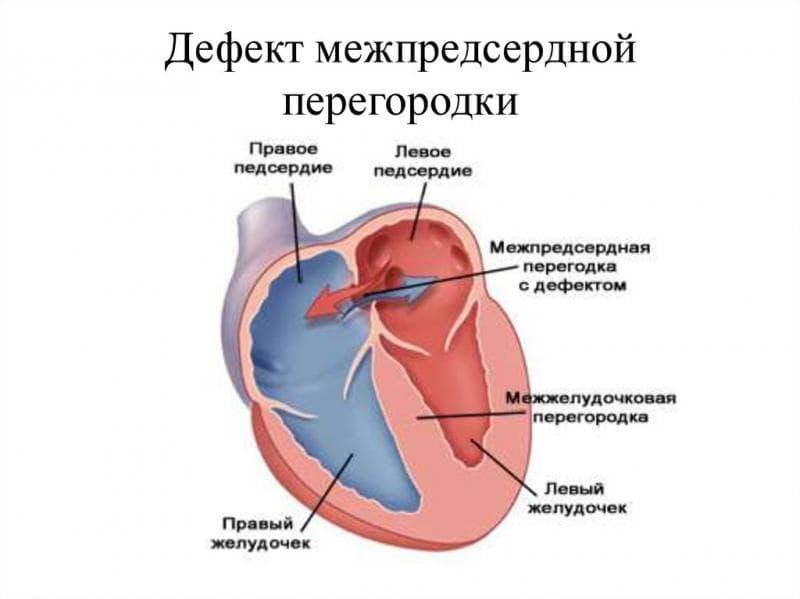 Дефект межпредсердной перегородки сердца: операция, лечение в СПб