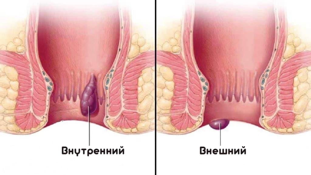 геморрой узлы операция