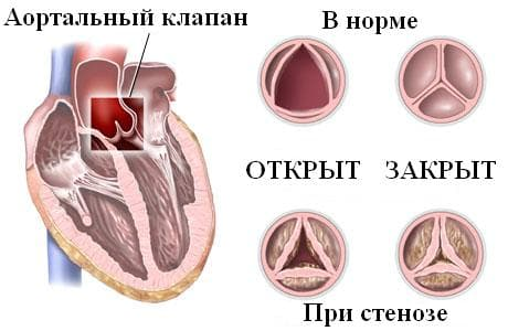аортальный стеноз.JPG