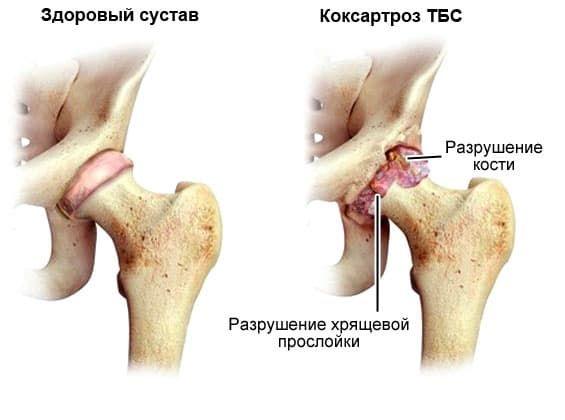 Болит голова остеохондроз шейный лечение